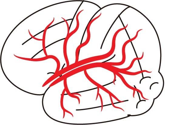 なぜ痛風になると高血圧になりやすいの?