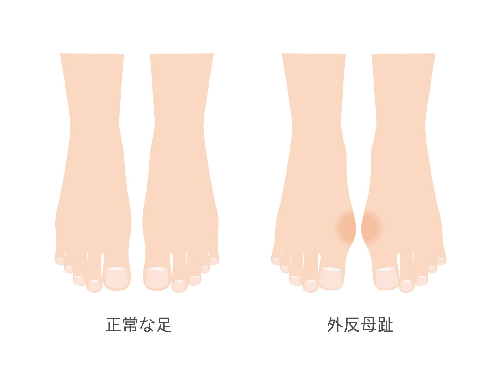 [痛風と間違いやすい病気] 外反母趾