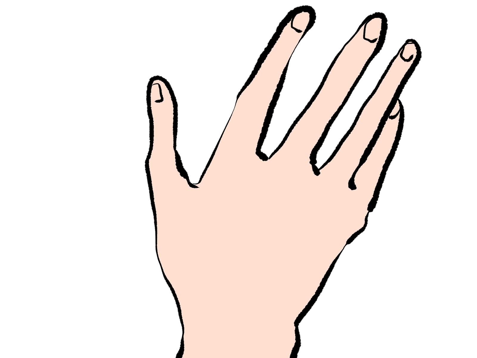初めての痛風発作が手に現れた珍しい例。骨折と思うほどの激痛