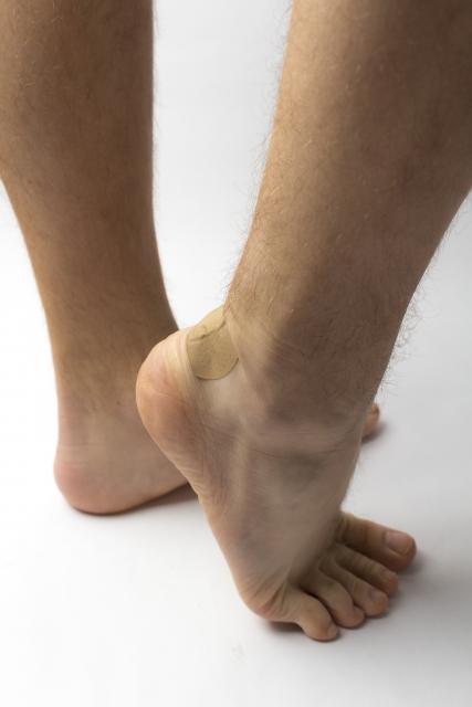 痛風はアキレス腱にも影響。アキレス腱の痛風結節にも注意を