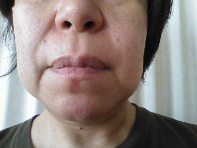閉経後に起こる痛風への影響