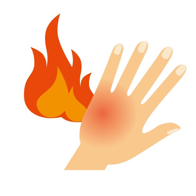 痛風は手の甲にも起こるの?