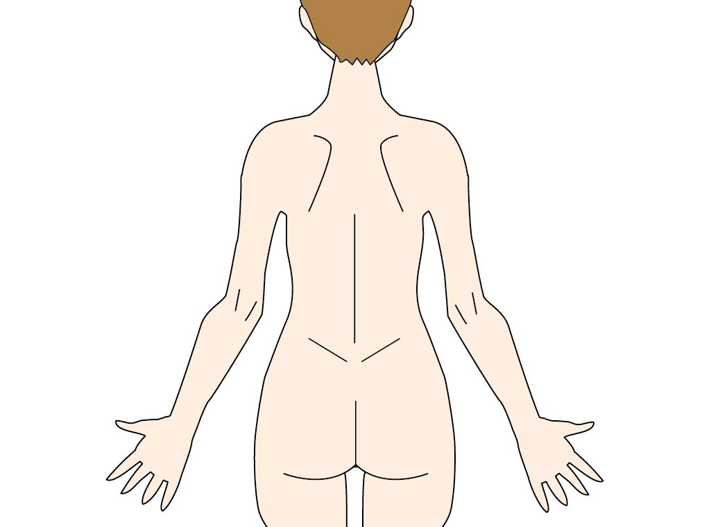 痛風は背中や腰にも起こるの?