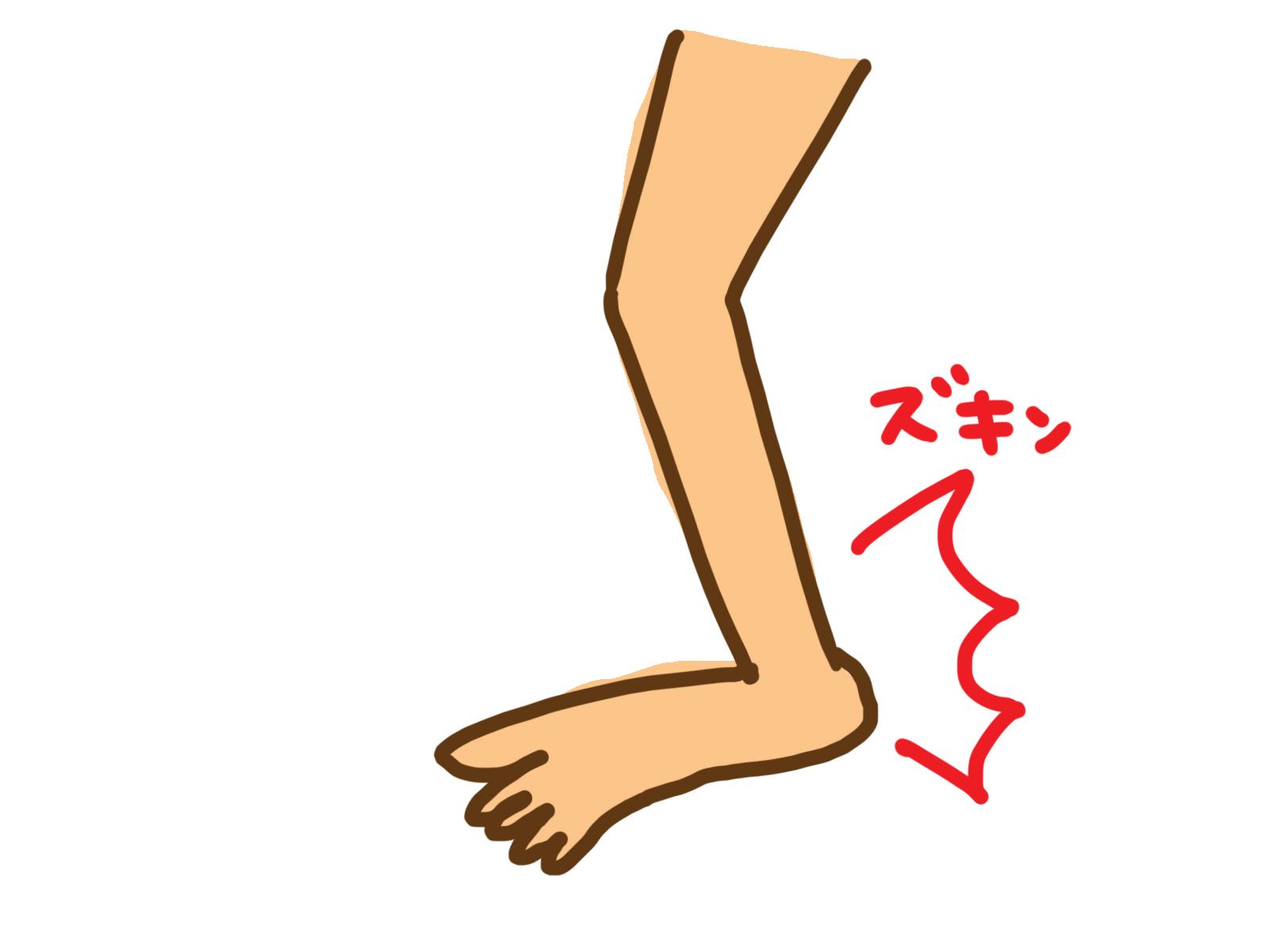 捻挫だと思った症状は痛風発作。長い間の勘違いで症状は悪化