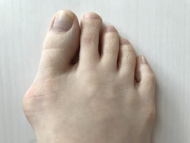外反母趾だと思っていたが、痛風でした。尿酸値は8.5