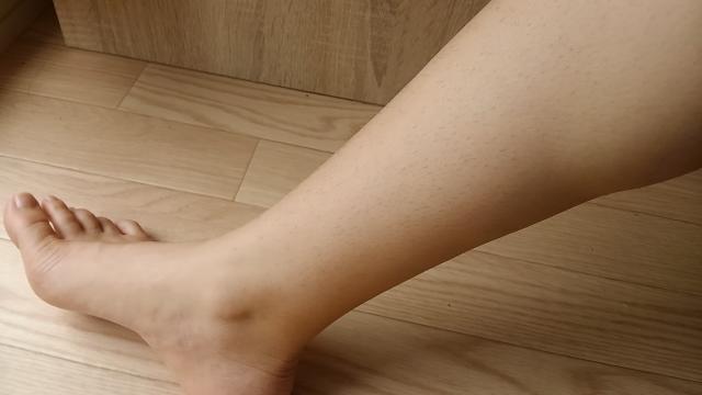 最初の痛風発作は足首。普通は足の親指に出るのに