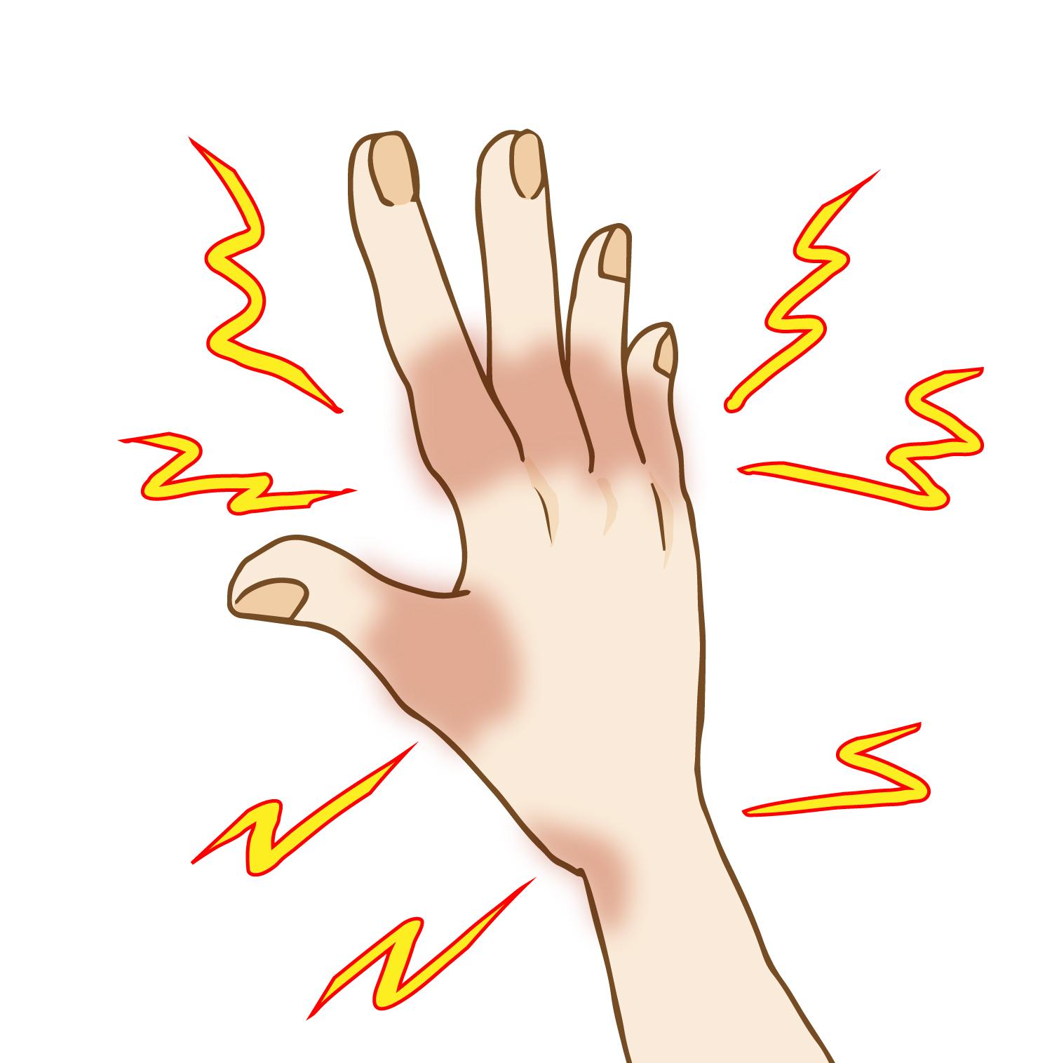 私は痛風の特異体質。尿酸の量が多く、排出が少ない